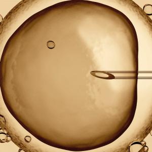 La fécondation in vitro, c'est quoi ?