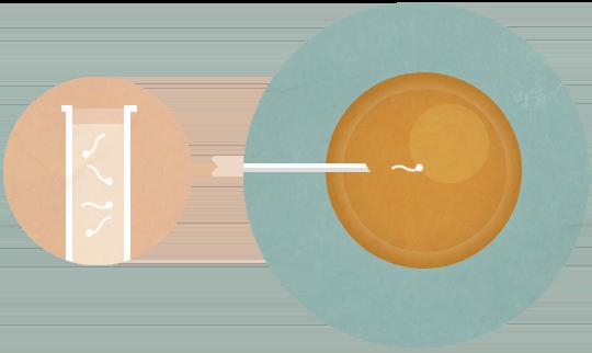 Etape3_FIV_insemination